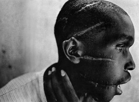 Le cicatrici di un ragazzo Ruandese liberato da un campo di sterminio